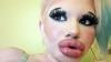 15 defa dudak estetiği olan kadın