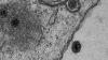 donovanosis hastalığı
