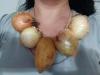 patates soğan lobisi